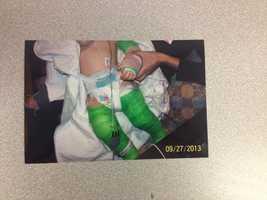 Rochester police say 13-month-old Ian Riley was beaten over a three-week period, and that his mother and her boyfriend are to blame.