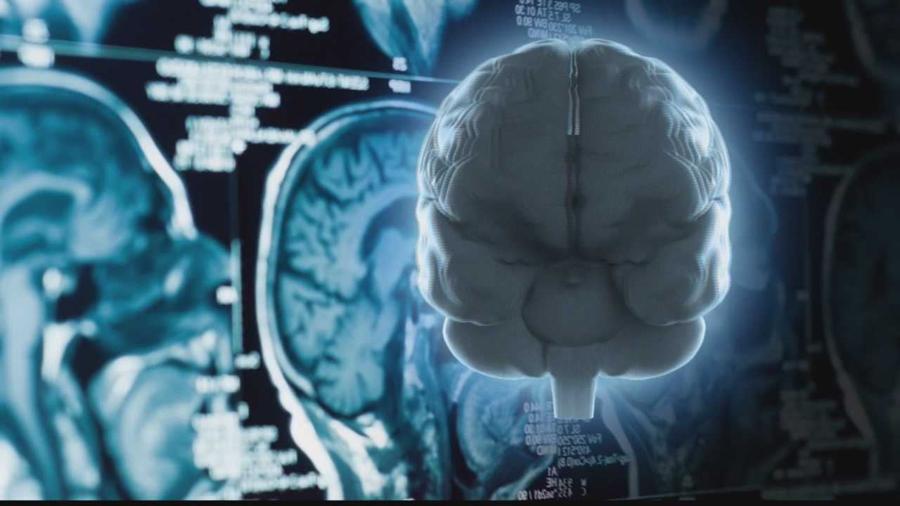 img-Alzheimer's Disease