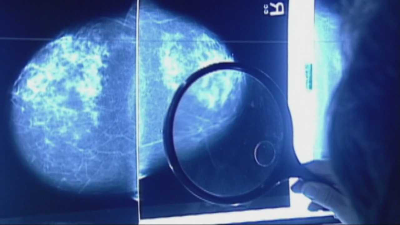 One-third of breast cancer patients treated unnecessarily, study says