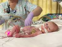 premature daughter one month baby