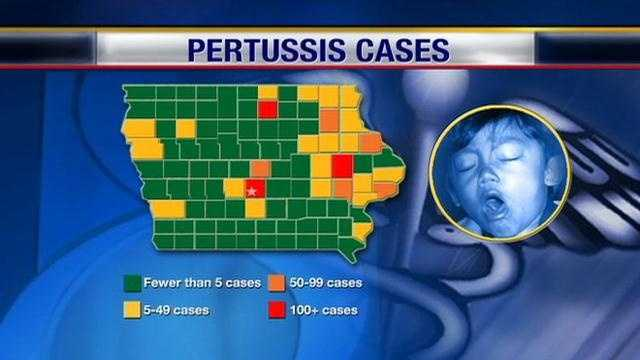 KCCIs Amanda Lewis reports on the whooping cough outbreak in Iowa.