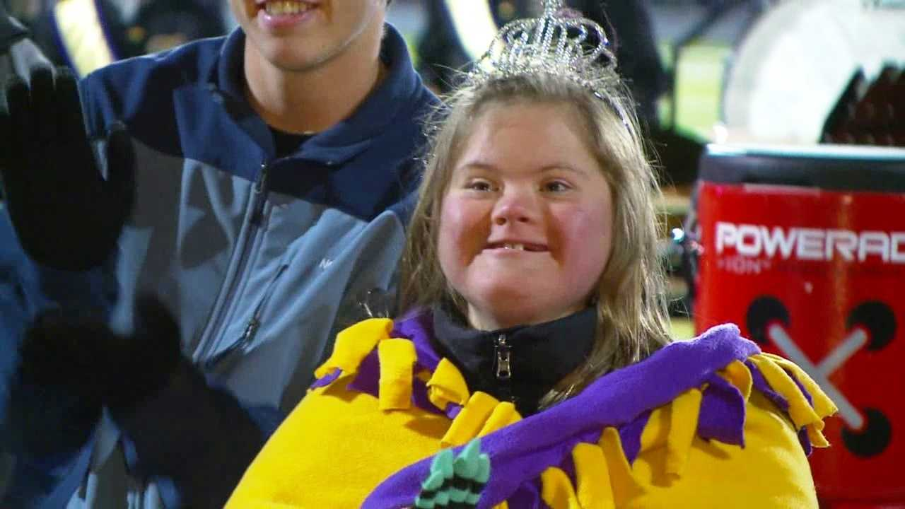 Katie Ball, a Waukee High School student who has Down syndrome, received big cheers at Friday night's football game when she was introduced to the public as homecoming queen.