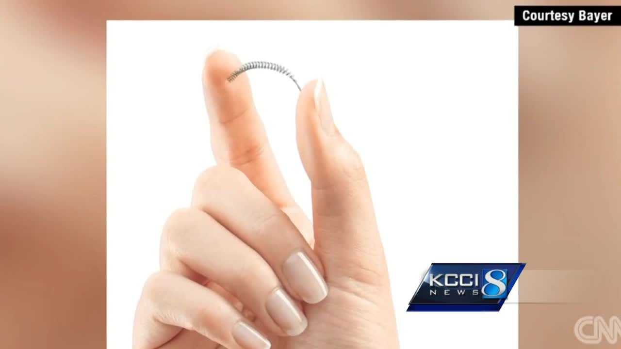 "Essure, popular form of permanent birth control, is still on the market despite carrying a ""black box warning"" from the FDA."