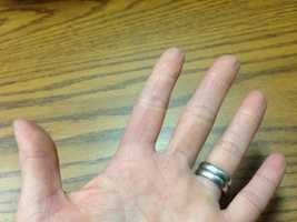 12.) I suffered second-degree burns on my left arm when I was in college. As a result, I no longer have a complete set of left hand fingerprints.