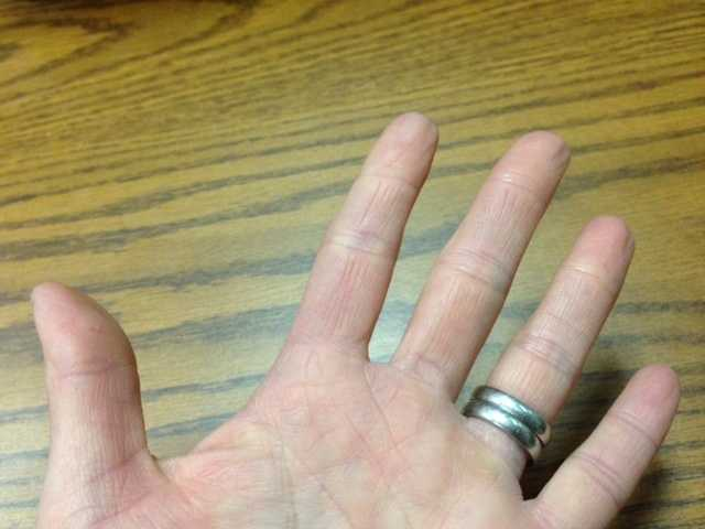 12.)I suffered second-degree burns on my left arm when I was in college. As a result, I no longer have a complete set of left hand fingerprints.