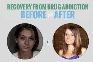 The following are men and women who've overcome drug addiction. See the results of recovery in these before-and-after photos.