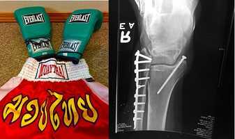 10.) I practiced Muay Thai kickboxing for several years. I bought these short while in Thailand. I even have the battle wounds to prove it. I have a titanium plate and screws in my ankle after a back spin head kick (Google Buakaw!).