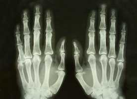 The study predicts there will be 494,563 new cases of arthritis in Iowa in the next two decades.