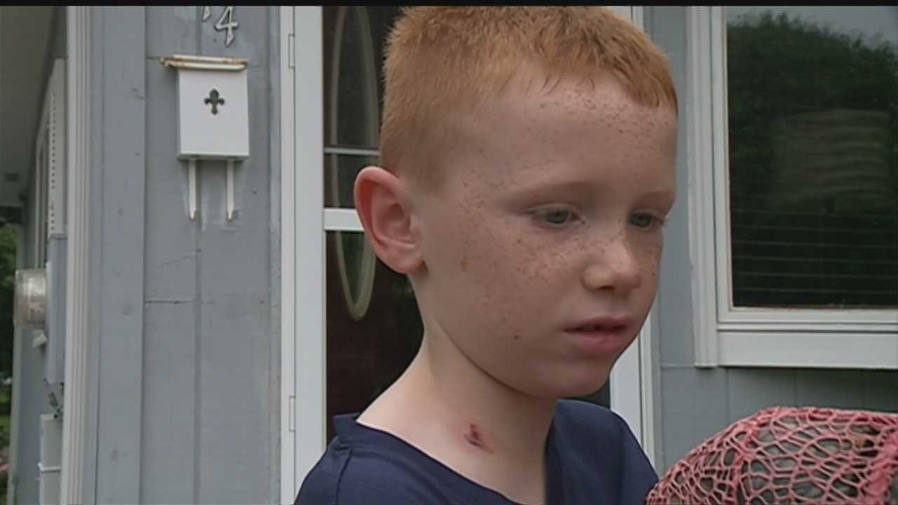 Council Bluffs police say a 7-year-old boy was watching fireworks near 26th Street and Avenue J with his grandparents when he was struck by a bullet.