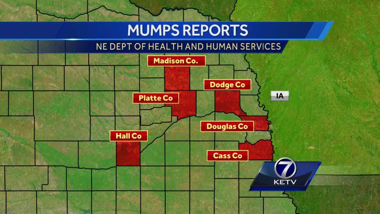 County and state health departments are tracking more than 20 mumps cases across eastern Nebraska and, since it's so contagious, that number could grow.