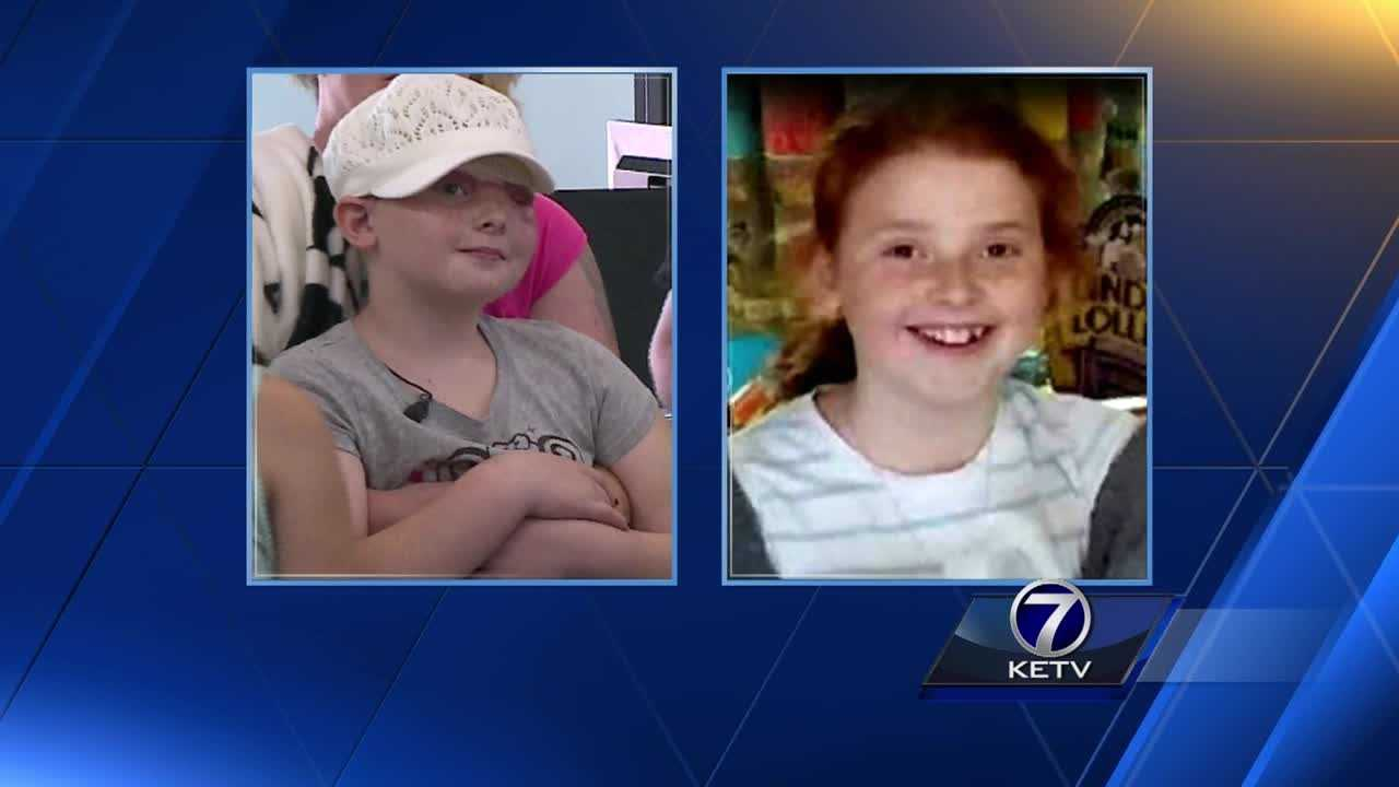 Elizabeth Gilreath's scalp was removed while she was on a carnival ride during Omaha's Cinco de Mayo Festival.