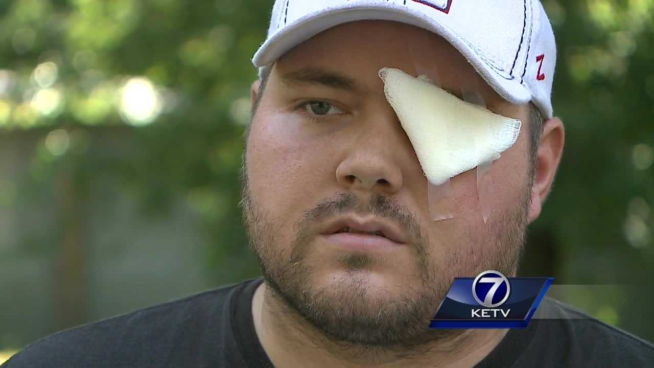 It's been just over three weeks since an explosion near Valley, caused by fireworks, resulted in a man losing one of his hands.