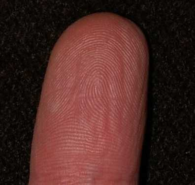 Vanishing fingerprints is a rarely heard of side effect but it does exist. A common chemotherapy drug causes your skin to peel which in turn makes your fingerprints disappear, according to livescience.com.