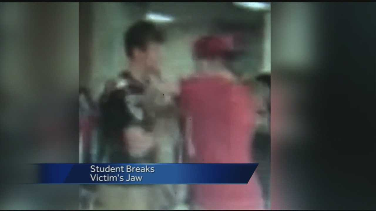 A Springdale junior high student has a broken jaw after his mother says he was beaten up at school.