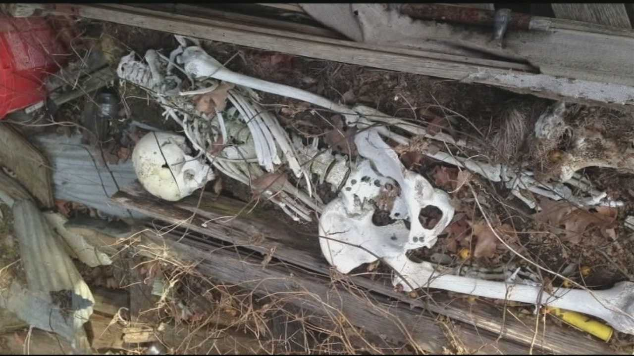 Police say the skeleton is real, and they're looking for a second one.