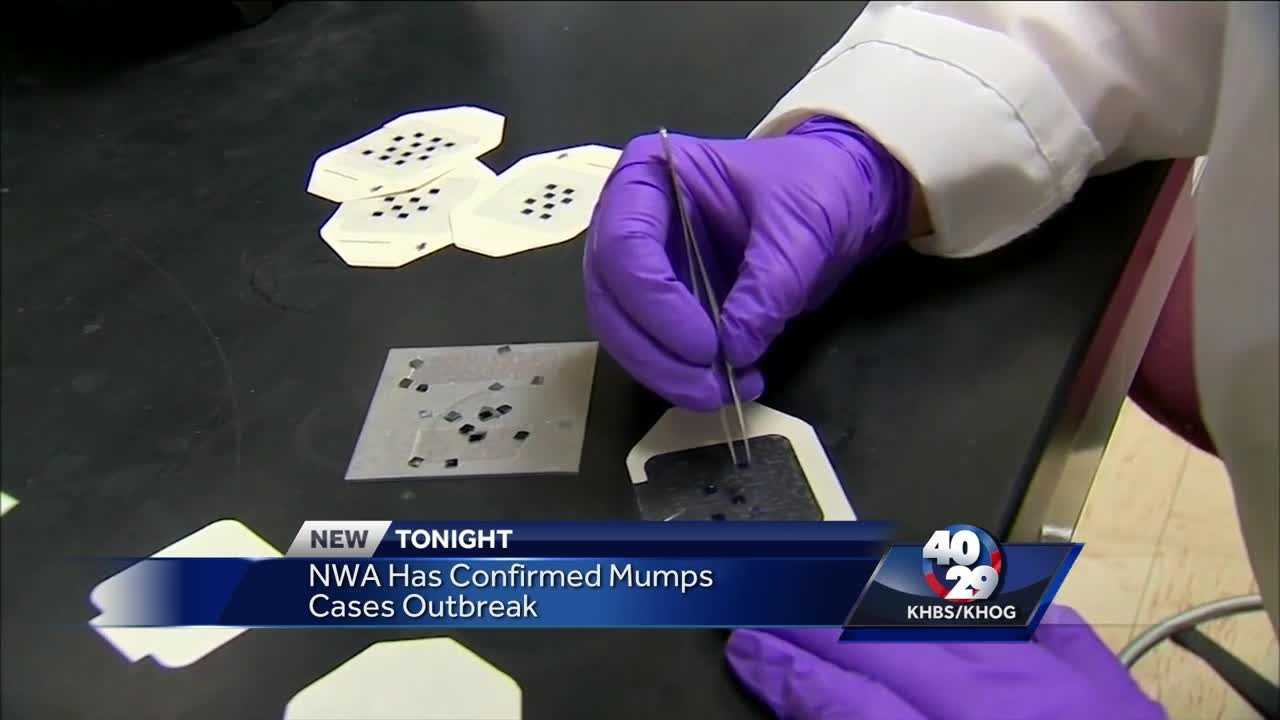 Mumps Outbreak in Springdale
