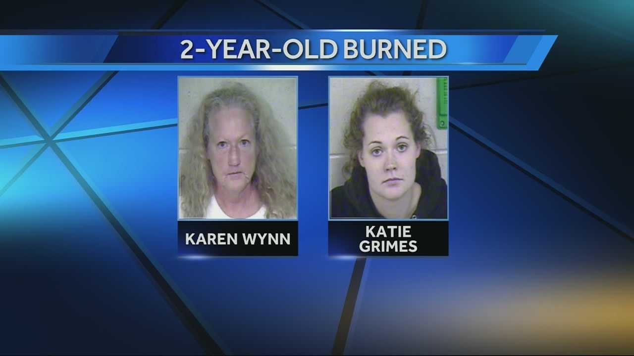 The mother and grandmother of a 2-year-old girl who suffered serious burns from hot water now face charges and other children have been removed from the home.