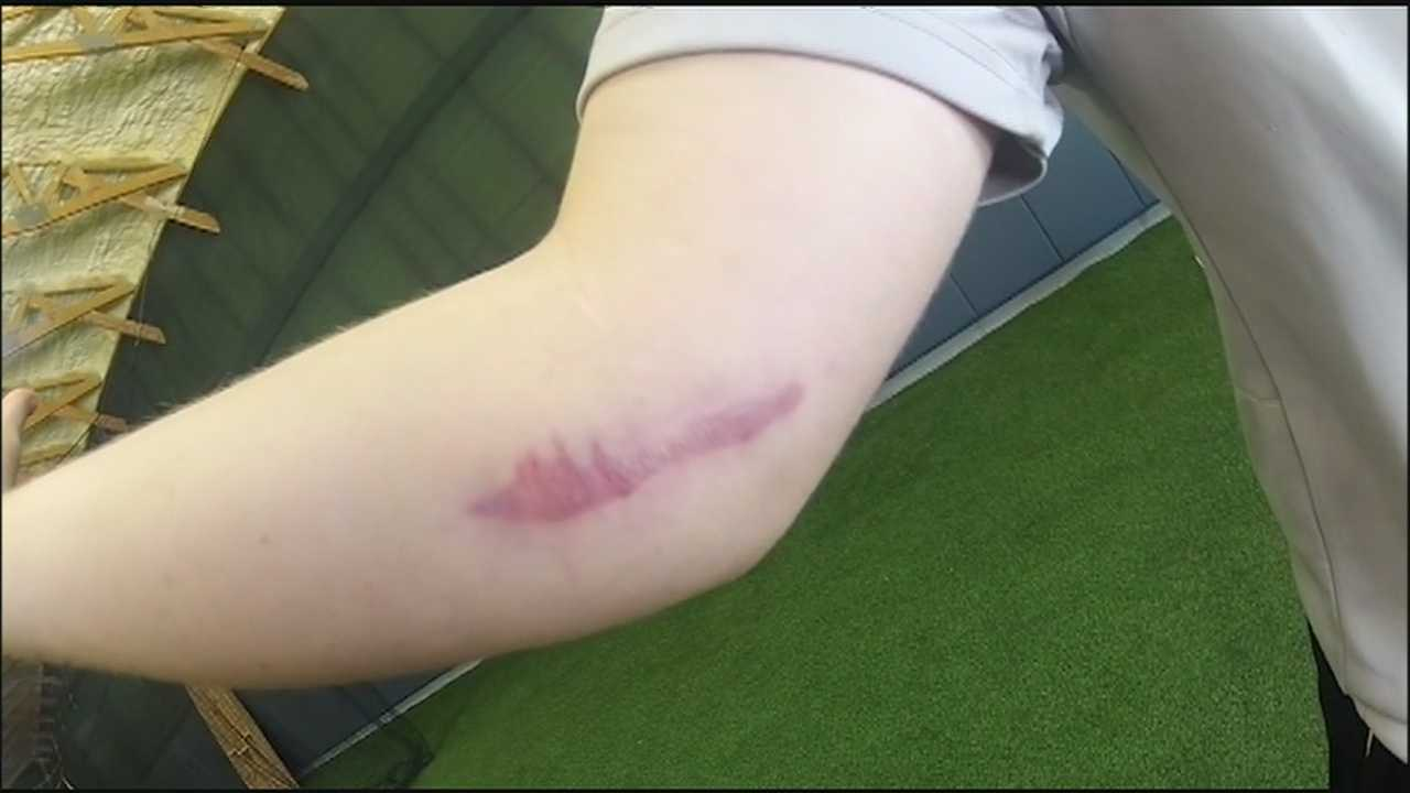 Many young athletes, some still years away from being old enough to play professional baseball, are also getting Tommy John surgery.