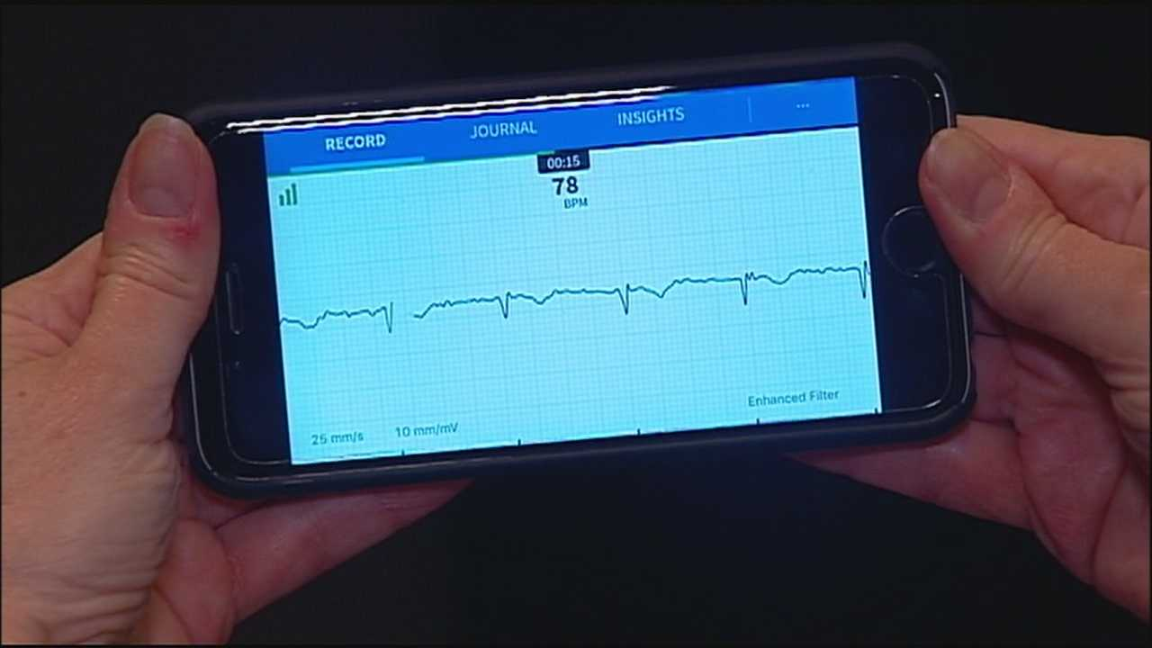 A potentially life-saving app is becoming popular with Kansas City-area cardiologists and their patients.