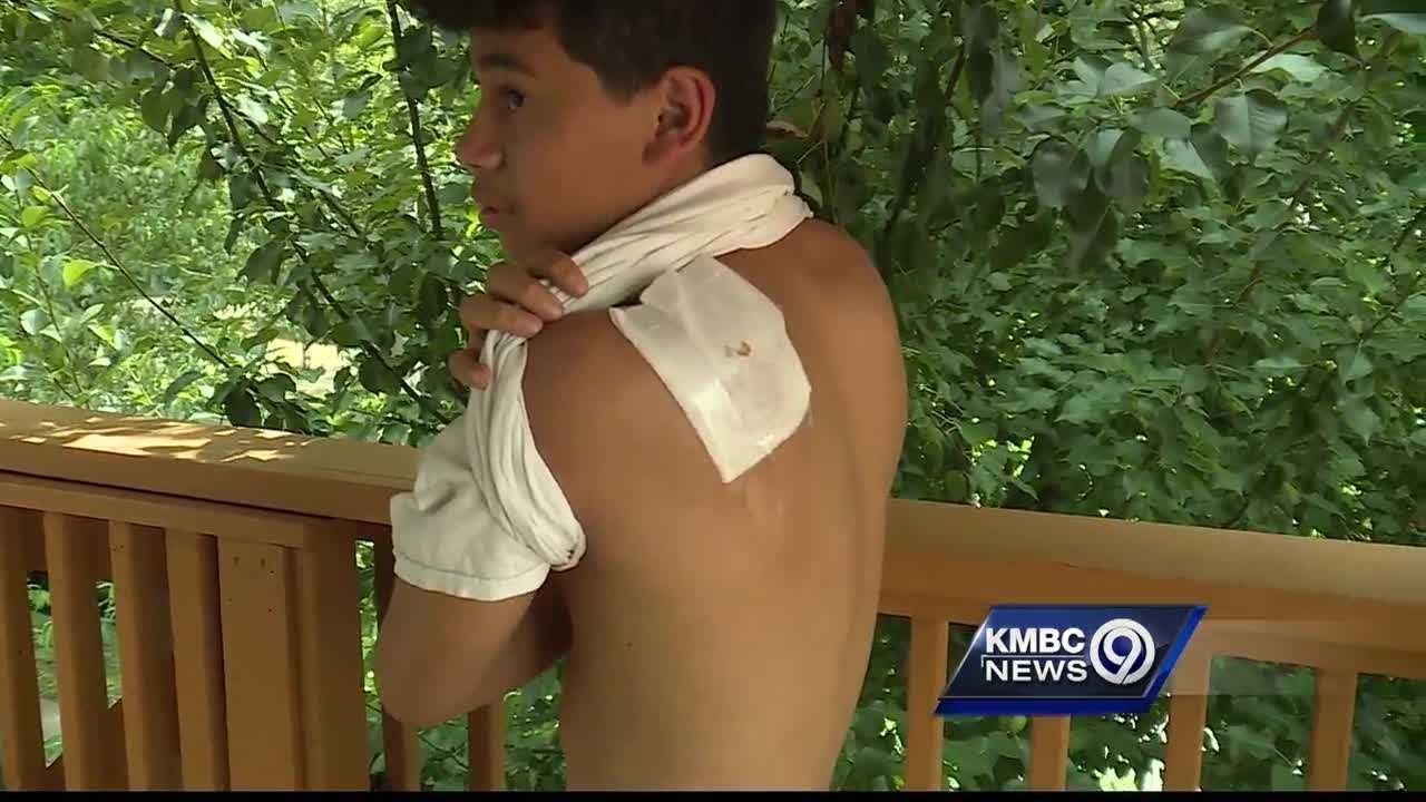 A Kansas City teenager is recovering at home after being hit in the back by a stray bullet while celebrating the Fourth of July.