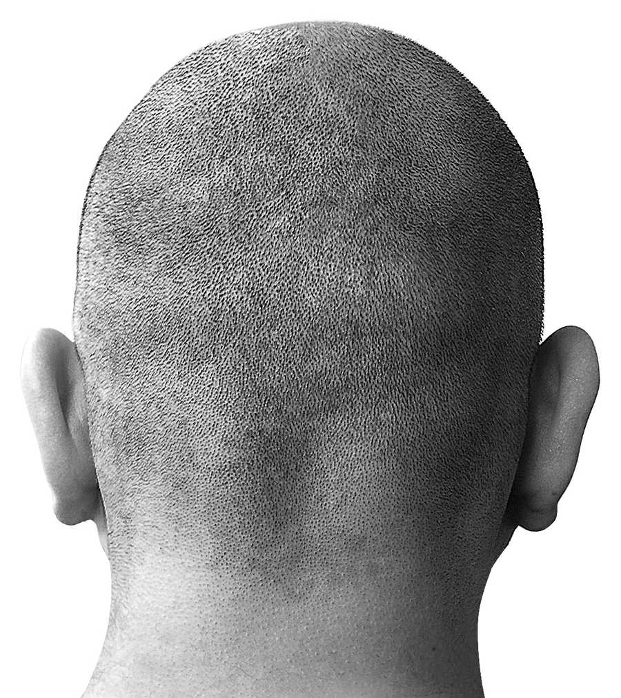 3. A Baldness treatment can ruin your sex life: