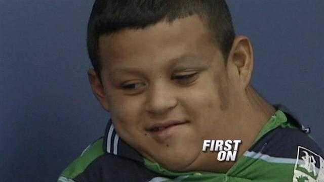 Boy with massive tumor visits hospital