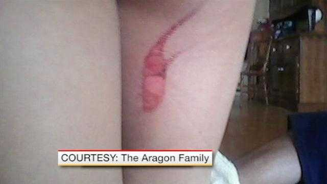 A 5-year-old boy recovering from second degree burns that his mother says he got from a toilet seat.