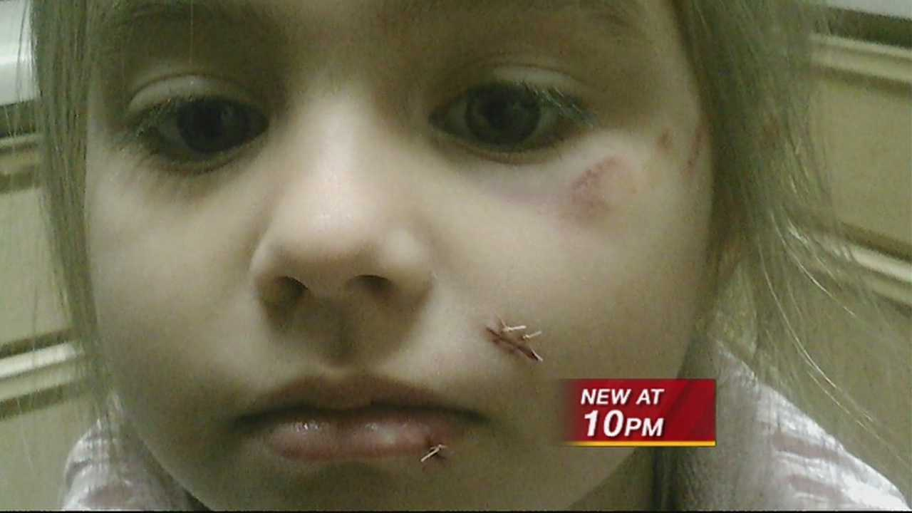 A Rio Rancho mom says her four year old was mauled by a neighbor's dog.