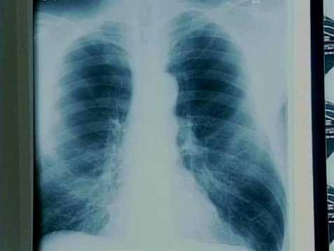 11. Flu/Pneumonia (294 deaths)