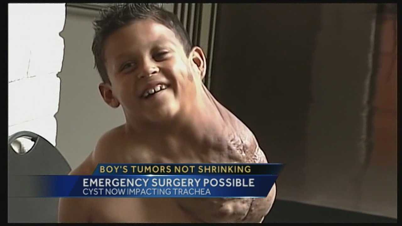 A little boy with massive tumors all over his body now has another medical problem that could threaten his life.