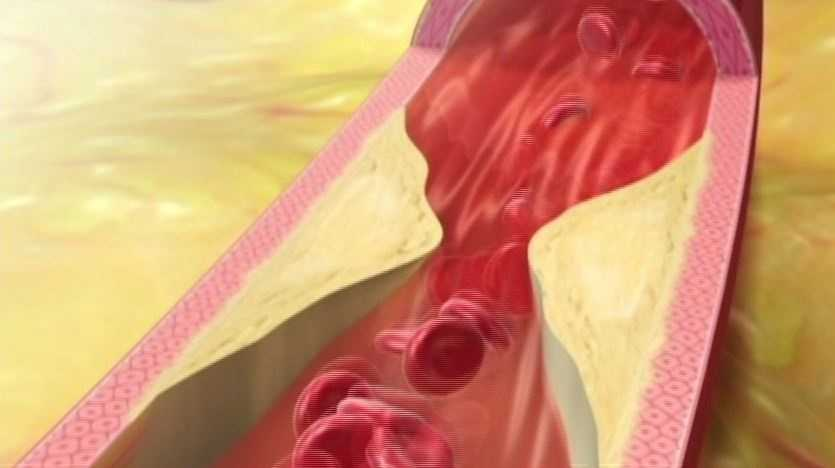 2.    Carotid intimal medial thickness. The earliest sign of future clinical problems like a stroke or heart attack is the thickness of the inner lining of the carotid artery. The so called Carotid IMT (internal medial thickness). Is an inexpensive noninvasive study.