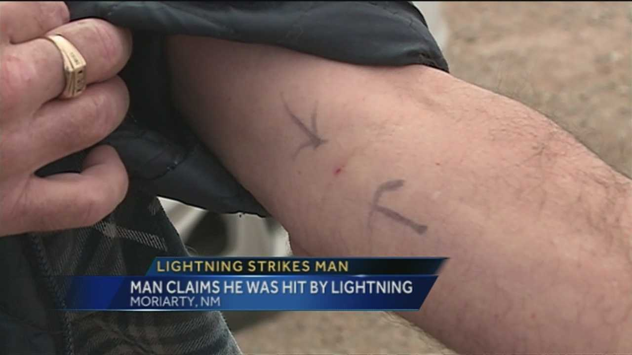 During some of our wild weather yesterday, one man was struck by lightning.