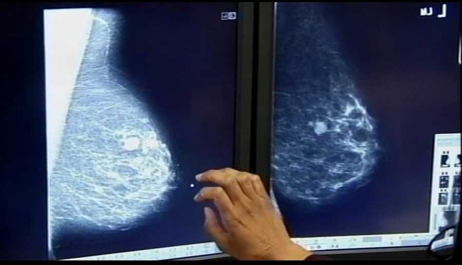 Most breast lumps don't indicate cancer. Other causes can be scarring or benign tumors. Women in their 40s are particularly likely to have lumps that are not cancer.