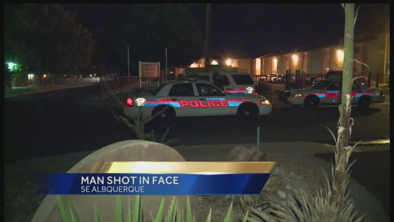Man Shot In Face Overnight