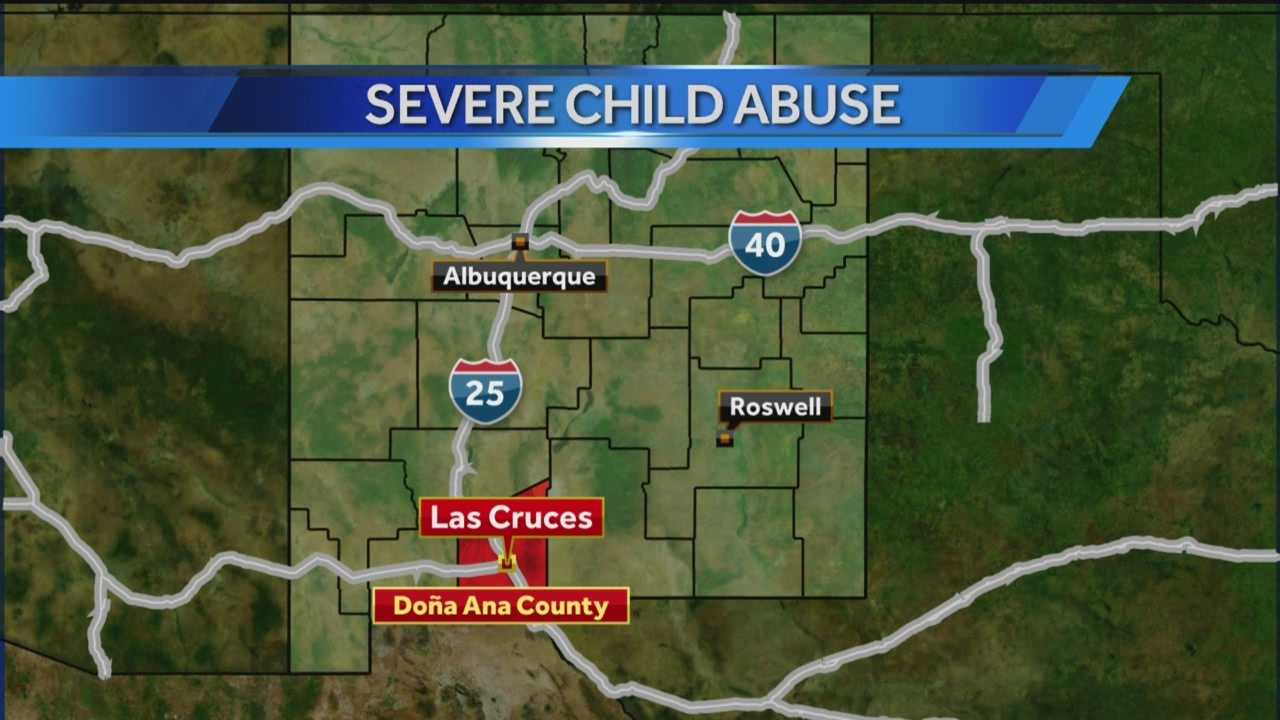 A 3-year-old boy suffered internal and external injuries after police said his mother and her boyfriend abused him.