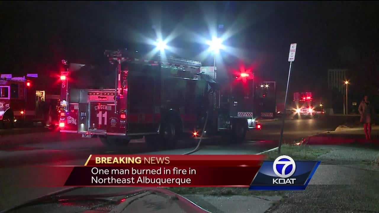 A man is recovering after suffering minor burns in a garage fire in Albuquerque.