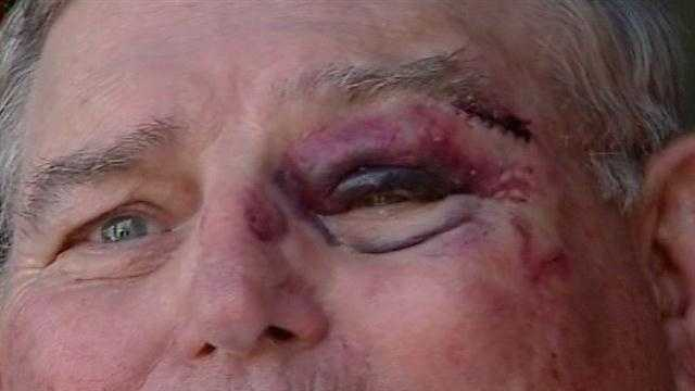 76-year-old man carjacked, pistol whipped
