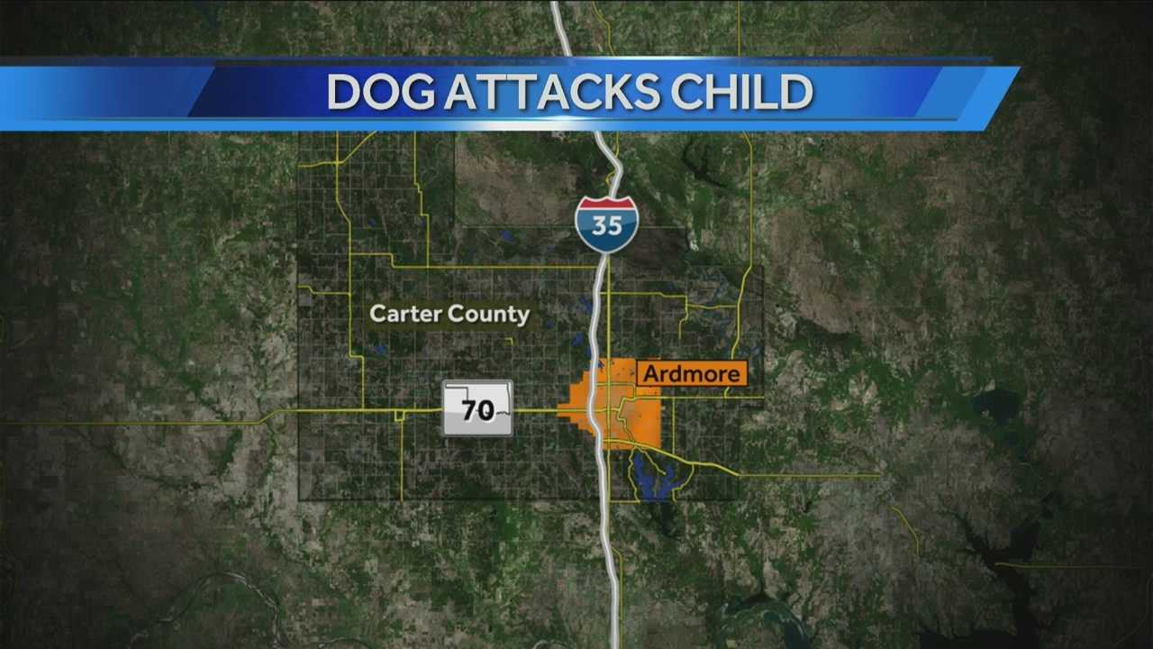 img-2-year-old in critical condition from multiple dog bites 10P H