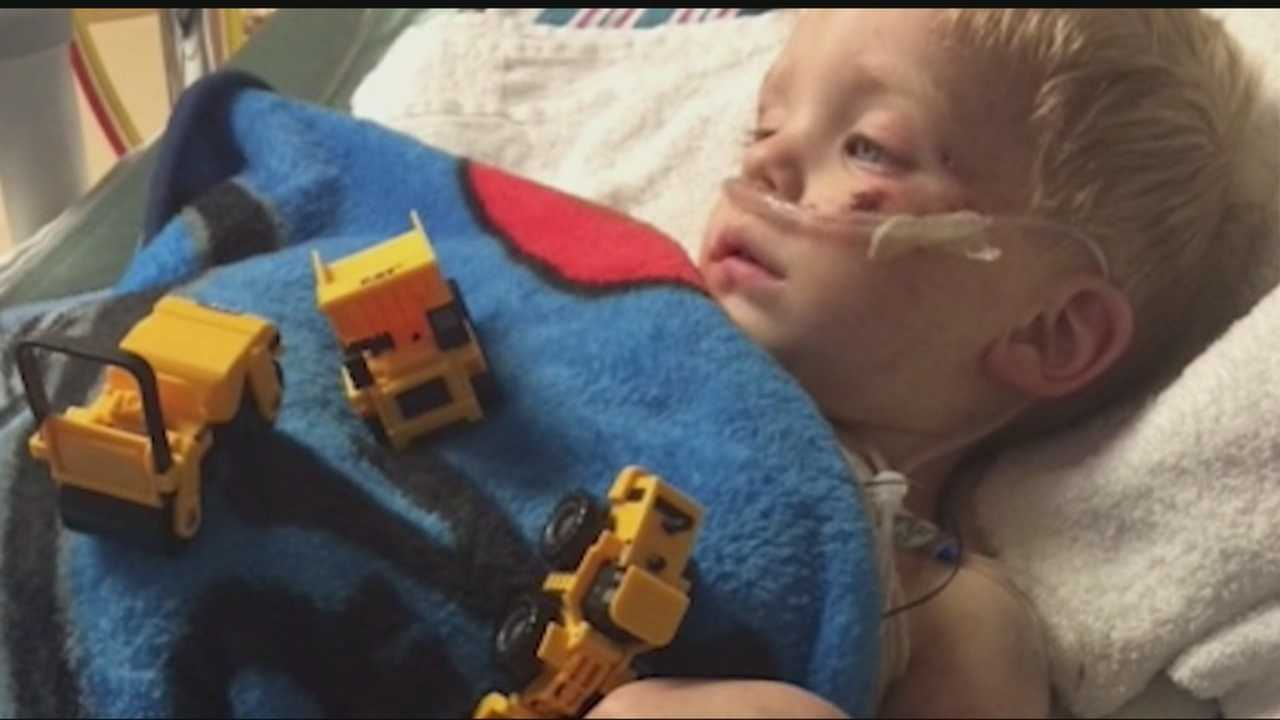 A toddler lost a foot and has several broken bones after an accident with a lawn mower, but he's recovering in the hospital and showing major signs of improvement.