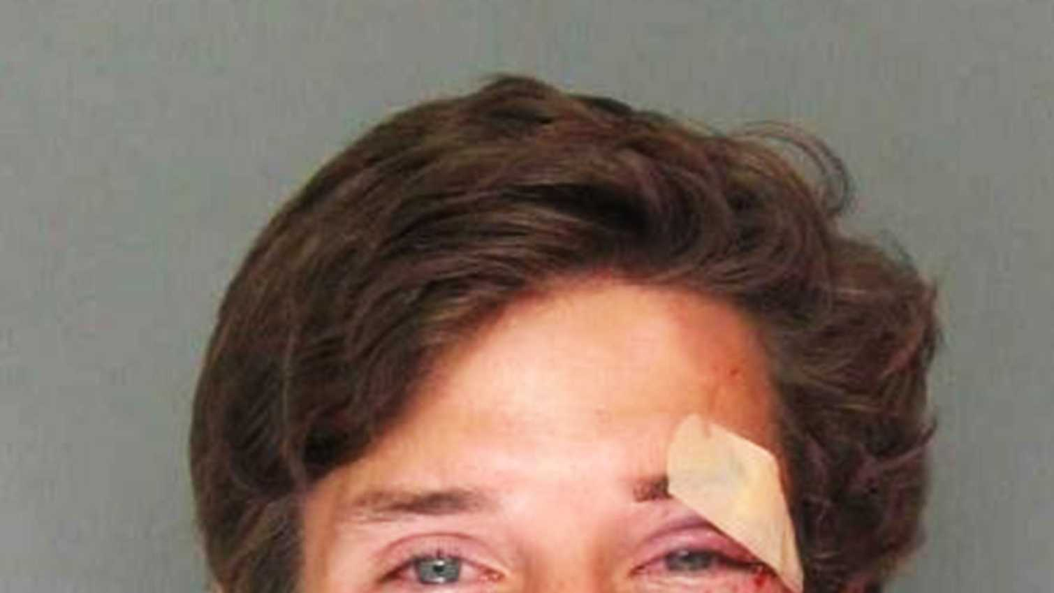 Despite suffering from facial injuries and facing felony charges, Kevin Smith is smiling in his jail mug shot.