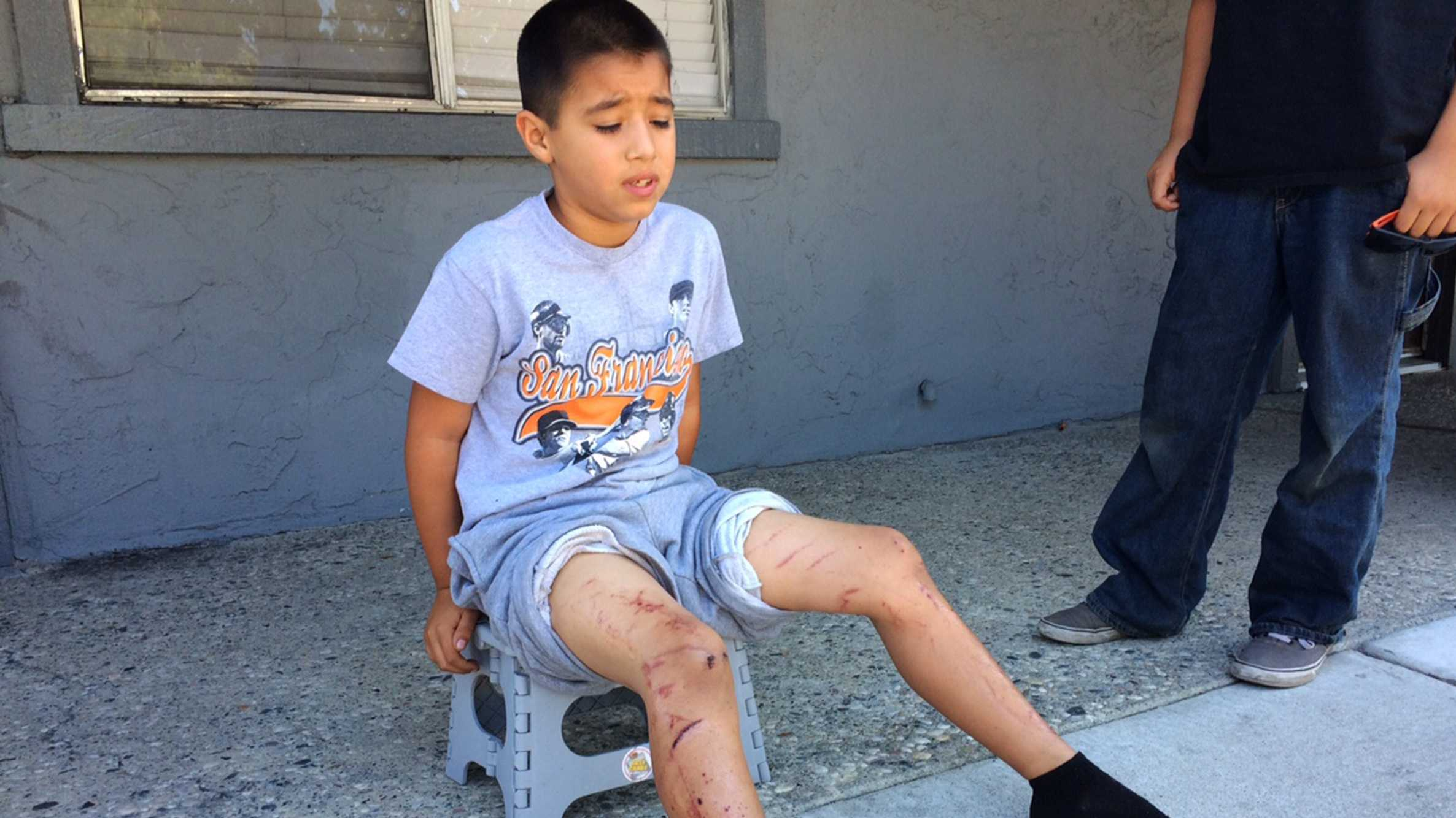 Dakota Ortez was burned in an illegal firework accident at a Hollister block party on the 4th of July.