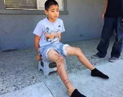 """It was the worst Fourth of July I (have) ever had,"" said Dakota Ortez, 9, who was hit by a mortar. The firework burned a hole in his pants and left burns on both legs. ""I thought I cut my leg off at first. I felt it and just looked at my leg and it was all burnt,"" Dakota said."