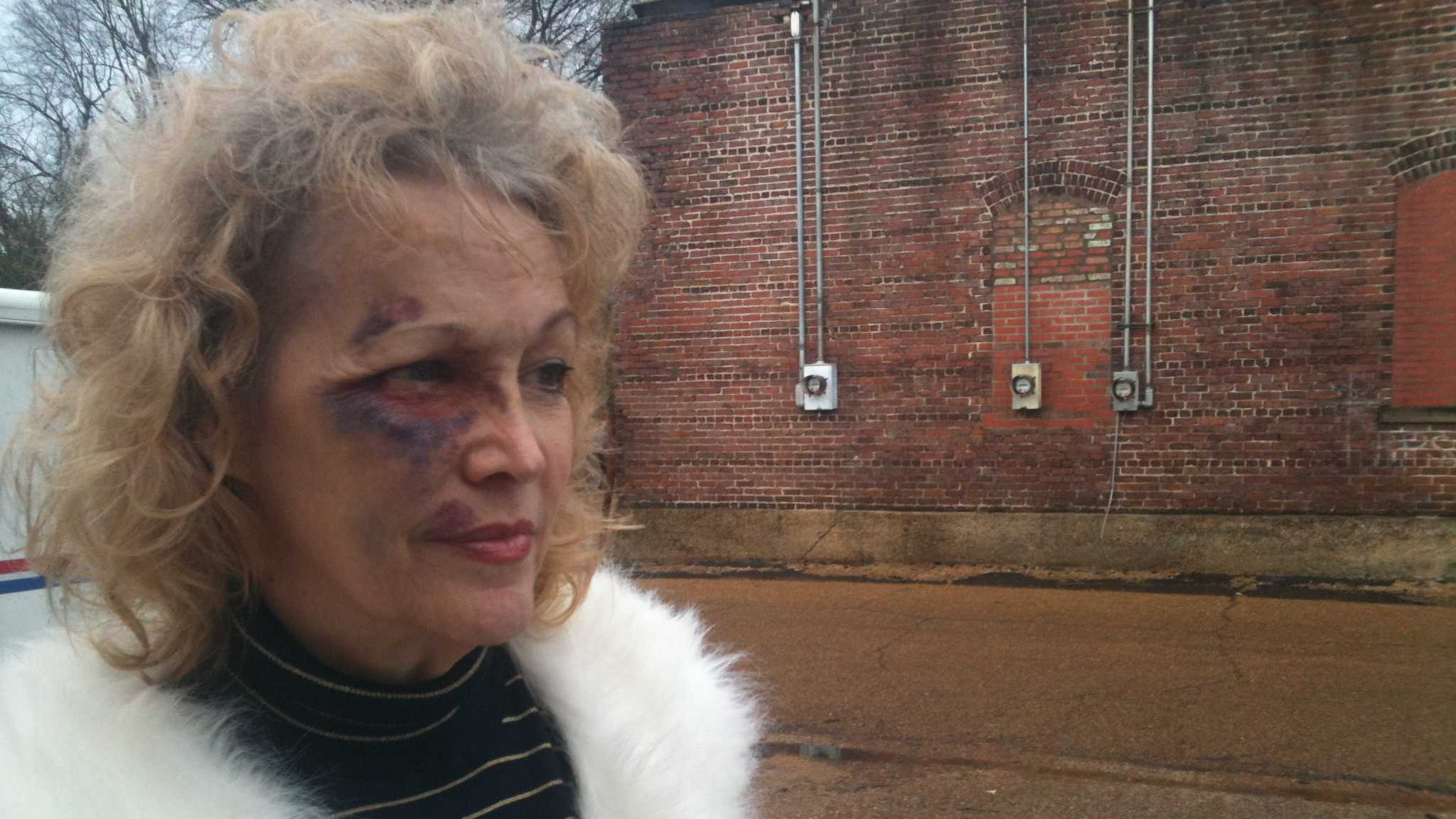 Charlotte Reeves says a mugger hit her several times in the face and stole her purse.