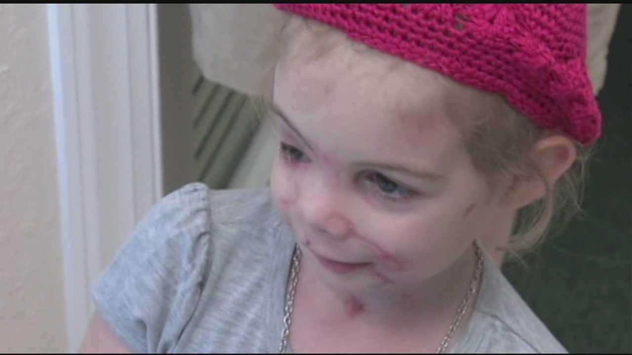 A three-year-old girl, who lost her right eye in a vicious dog attack, now has a new prosthetic eye.