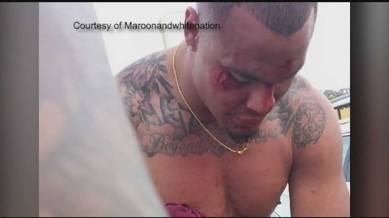 Cameras caught a group attacking Dak Prescott on spring break.