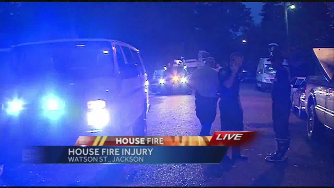 Investigators are looking into what sparked a house fire that burned a man on Watson Street in Jackson.