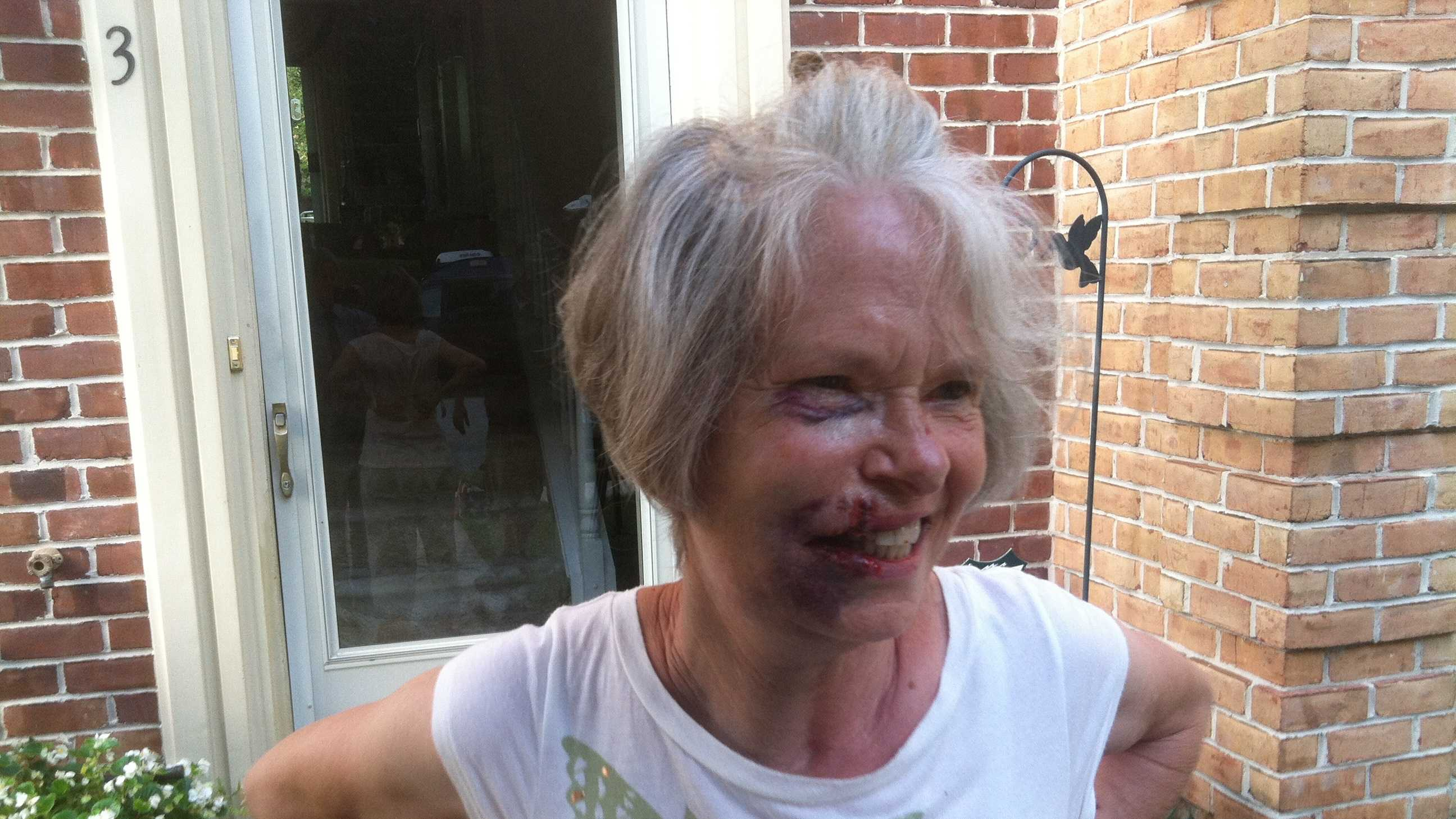 Baltimore County police said 75-year-old Cockeysville's resident Gwyn Sirota is recovering from a beating during a robbery inside her townhouse Monday morning.