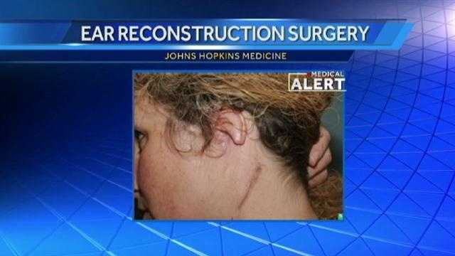 Sherri Walter, 42, of Bel Air, started to undergo the operations in January 2011. Her left ear had been removed due to an aggressive skin cancer. The painstaking series of operations is believed to be one of the most complicated ear reconstructions ever performed at Hopkins, piecing together more than a dozen bits of bone, cartilage, skin and arteries.
