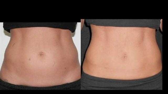 Coolsculpting before and after image.