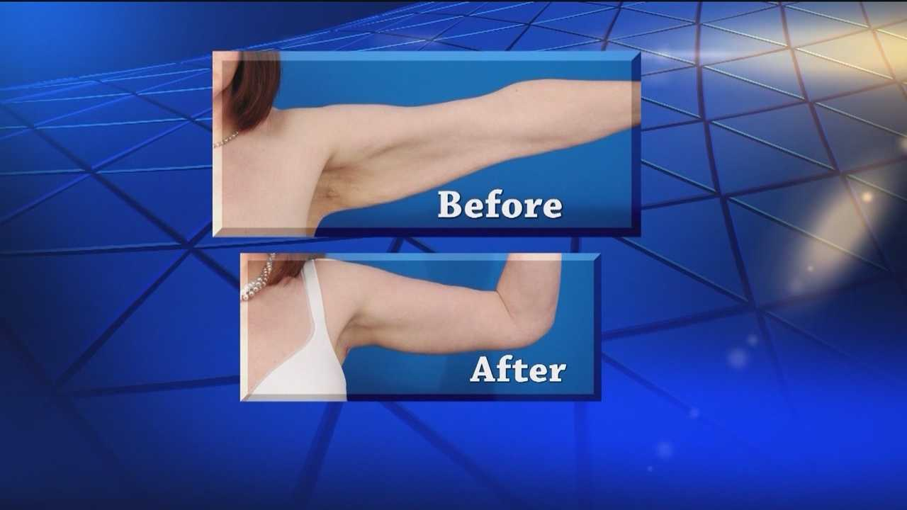 If you're a woman who avoids wearing short-sleeve blouses and tank tops because of upper arm flab, there is a way to get that excess skin removed.